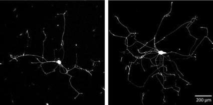 Making axons branch and grow to help nerve regeneration after injury | Chasing the Future | Scoop.it