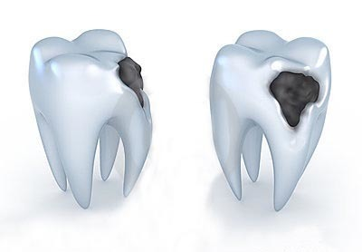 Perceptions and Practices of Dental Caries Prevention by Maryland Latinas: A Qualitative Study | Journal of Dentistry and Oral Care Medicine | Open Access Journals | Annex Publishers | Annex News | Scoop.it