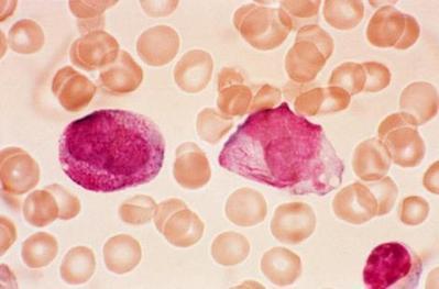 Traitement expérimental: 89% des patients voient leur leucémie disparaître   Santé   Scoop.it