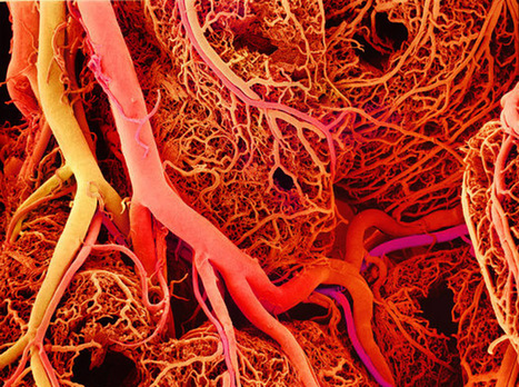 Researches Find Way to 3D Print Blood Vessel templates | Stem Cells & Tissue Engineering | Scoop.it