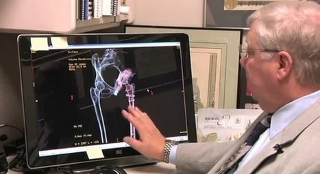 3D Printer Revolutionized Hip Replacement Surgery | 3D-Print Tech | Scoop.it