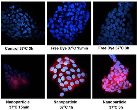 Anti-inflammatory luteolin concentrated in nanocapsules in the blood inhibits lung-cancer growth | KurzweilAI | Break through technology | Scoop.it