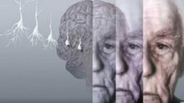 Los casos de demencia se triplicarán para 2050 - BBC Mundo - Noticias   Cuando el cine nos alcance   Scoop.it