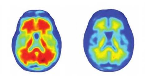 Positive results from antibody treatment in human Alzheimer's trial | Immunology and Biotherapies | Scoop.it