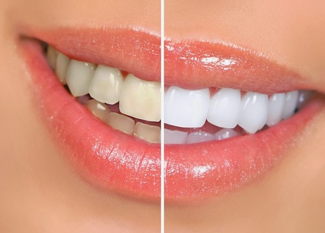 Benefits of Teeth Whitening? | Best Dental Hospital Chanda Nagar | Scoop.it