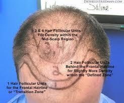 Hair Transplantation and Hair Thickness | Hair Transplantation | Scoop.it