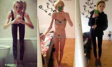 'Anorexia blogs nearly killed me': Even when Grainne, 17, was starving to death 'thinspiration' sites encouraged her to lose more weight | Anorexia nervosa | Scoop.it