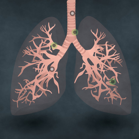 Smoking Lung - Health Online | Webdesign et inspiration | Scoop.it