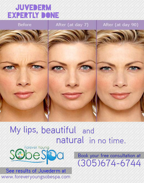 Juvederm in Miami Beach | foreveryoungsobespa.com | forever young sobe spa | Scoop.it