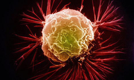 Is Affluence the Root Cause of Cancer? | Cancer - Advances, Knowledge, Integrative & Holistic Treatments | Scoop.it