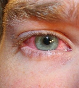 What Causes Red Irritated Eyes? Here Are The 10 Most Common Causes | Blood Disorders | Scoop.it
