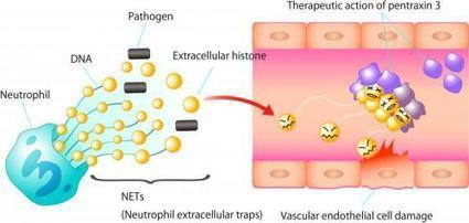 A novel therapy for sepsis? | Sustain Our Earth | Scoop.it