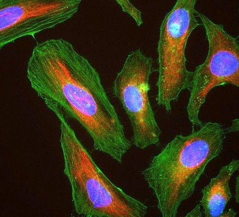 Famous HeLa Cells Get Genetic Close-Up, and New Data-Sharing Rules | Data Privacy | Scoop.it