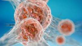 Cancer samples from dead patients sought for new study - BBC News | MRC research in the news | Scoop.it