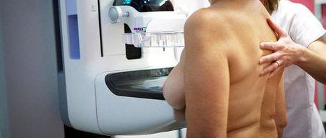 Le cancer du sein tue de plus en plus de femmes dans le monde | Actus | Scoop.it