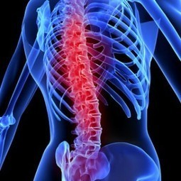 Back, Neck And Spinal Cord Injuries Caused By Accidents | BUSINESS & TECH CURATIONS 2015 | Scoop.it