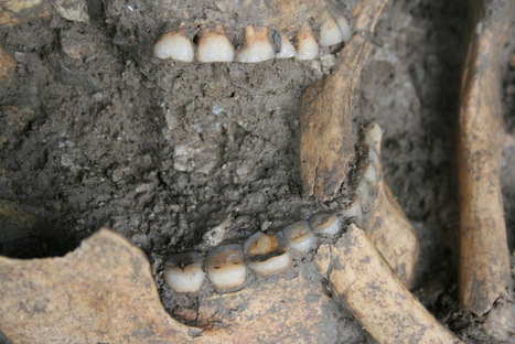 Ancient dental plaque sheds new light on the diet of Mesolithic foragers in the Balkans | Histoire et Archéologie | Scoop.it
