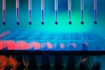 5 key criteria for selecting the most appropriate ELISA kit to detect Human Cardiotrophin-1 | Biology, Biotechnology, Medical research | Scoop.it