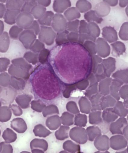 Leucémie : une découverte qui pourrait mener à un vaccin ? | Santé - Recherche | Scoop.it