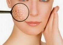 Tips Mengatasi Kulit Bersisik | kesehatan dan kecantikan | tips info kesehatan dan kecantikan | Scoop.it