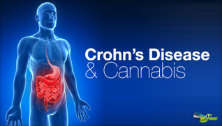 Israeli Study Suggests Cannabis Relieves Crohn's Disease | medical marijuana | Scoop.it