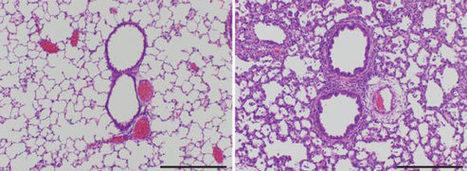 Eritoran: New Drug for Influenza Shows Promise in Mice Study | Biosciencia News | Scoop.it
