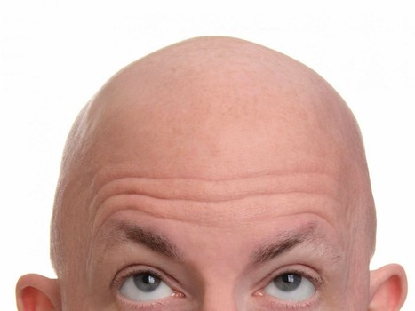 Baldness and thinning hair are due to aging DNA and elimination of follicle stem cells | Amazing Science | Scoop.it