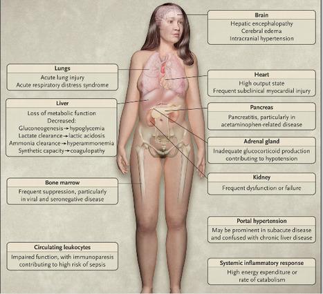 Acute Liver Failure | Now@NEJM - New England Journal of Medicine | Organ Donation & Transplant Matters Resources | Scoop.it