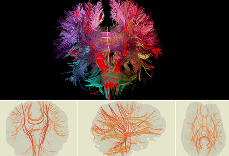Futurity.org – Software maps brain's nerve bundles | Science -Facts and Fiction | Scoop.it