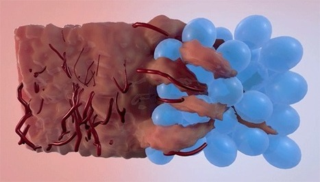 Injectable Hydrogel Material Serves as Scaffold to Heal Wounds | Shaping the Future of Medical Technology | Scoop.it