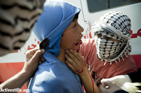 Israeli military shoots 14-year-old protester in face with rubber bullet | Human Rights and the Will to be free | Scoop.it