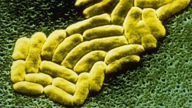 Warning over hospital superbug rise | It Comes Undone-Think About It | Scoop.it