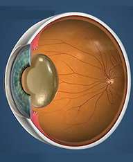 Cataract Surgery San Antonio | San Antonio Cataract Surgery | | San Antonio Eye Doctors | Scoop.it
