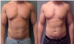 Gynaecomastia Surgery Cost in Hyderabad | Hair Treatments | Scoop.it