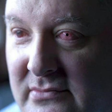 Ciego recupera la vista tras implante de pieza dental en ojo - Terra Chile | Crooke & Laguna | Scoop.it
