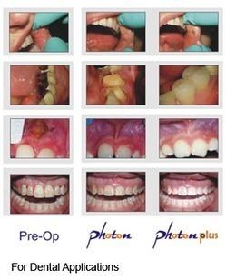 Dental Diode Laser | Soft Tissue Diode Laser | Zolar Dental Laser | Laser Manufacturer | Scoop.it