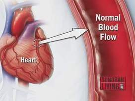 Mayo Clinic on how to know if you're vulnerable for heart disease - ABC15.com (KNXV-TV)   Social Media and Health Care   Scoop.it
