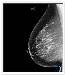 Breast cancer Natural Health Glossary: Medical Terms, Therapies, and Accreditation - Natural Healthcare Canada | Word News | Scoop.it