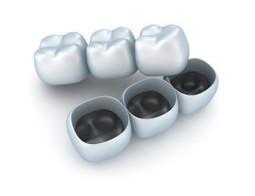Dental Crowns London Ontario, Porcelain Veneers London Ontario | DR. VO FAMILY DENTISTRY | Doctor Vo, Phuong | Scoop.it