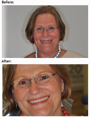 Cosmetic Dentistry & Dental Implants in Encino | Easy Family Dental | Scoop.it