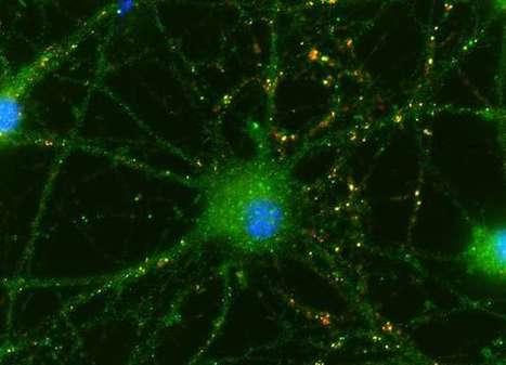 Umbilical cells help eye's neurons connect | Social Neuroscience Advances | Scoop.it