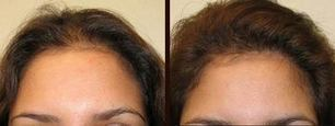 Hair Transplant most of the Ladies Choice   Royal Cosmetic Surgery   Scoop.it