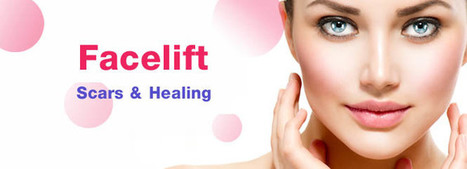 Facelifts – Scars & Healing | cosmeticsurgery | Scoop.it