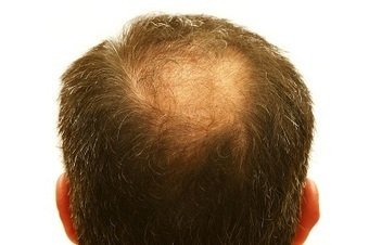 From OTC Drugs to a Mexico Hair Transplant: The Best Hair Loss Cures | BajaHairCenter | Scoop.it