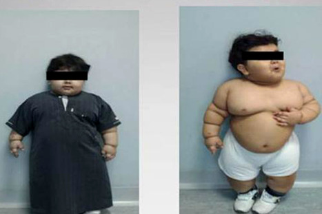 Obese toddler has gastric bypasssurgery   Natural Health   Scoop.it