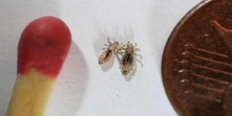A cheap and easy way to get rid of head lice - eMaxHealth | Dandruff | Scoop.it