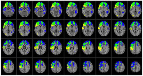 One Gene Influences Recovery from Traumatic Brain Injury | Neuroscience News Research Articles | Neuroscience Social Network | Concussions | Scoop.it