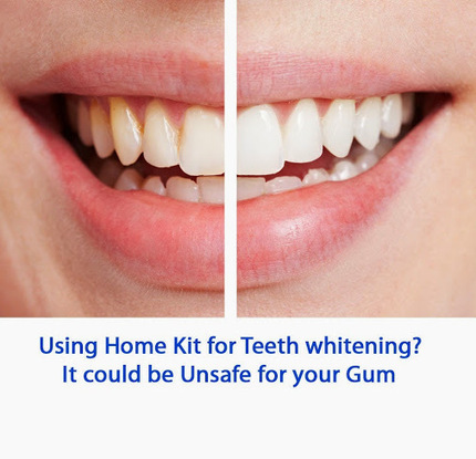 Home Kit of #teethwhitening are not always assessed for safety and tend to be… | DENTAL TOURISM | Scoop.it