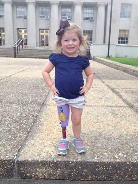 Small Steps Share ~  Another great shot of Madalyn...Heather writes..New leg tim... | Disability News Update | Scoop.it