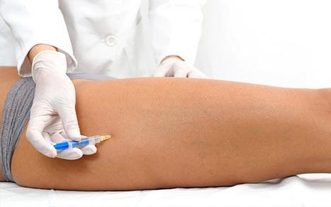 Omeomesoterapia. Quando l'Agopuntura incontra la Mesoterapia | Medicina Naturale | Scoop.it